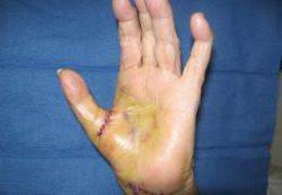 Arthritis Of Hand Dallas Hand Arthritis Hand Surgery