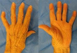 Cialis Arthritis Hand Stiffness